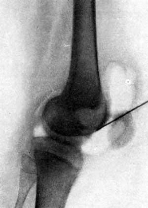 Артропневмограмма коленного сустава при туберкулезном гоните