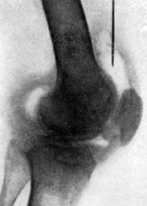 Хронический туберкулезный синовит