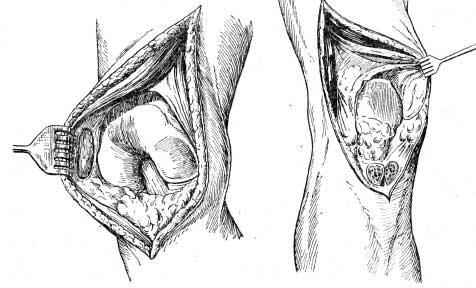 Доступы к коленному суставу