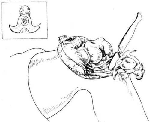Удаление переднего отдела синовиальной оболочки вместе с верхним заворотом и остатком коленной чашки