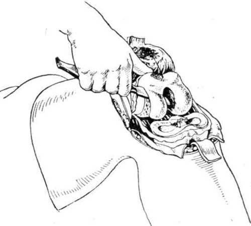 Срезание хрящевой поверхности эпифиза бедра ножом
