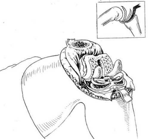 Удаление обрезанных суставных поверхностей вместе с задним отделом синовиальной оболочки