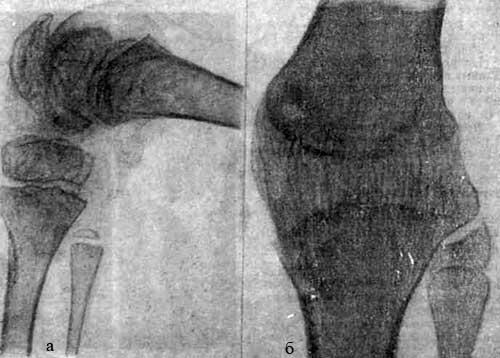 Рентгенограммы коленного сустава больного Р.