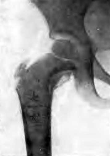 Пристеночный очаг внутреннего отдела шейки бедра. Больная С., 4 лет