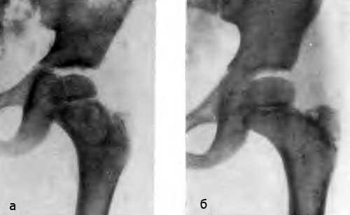 Удаление большого шеечного очага через наружноверхний доступ. Больной К., 10 лет