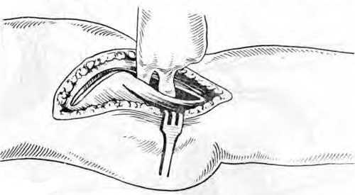 Проникновение к шейке бедра в промежутке раздвинутых продольно мышц (натягивающей, фасцию и прямой мышцы бедра)