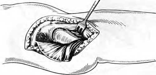 Образование верхнепереднего мышечного лоскута (из средней ягодичной и натягивающей фасцию) и его запрокидывание кзади