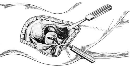Экономное полукружное обрезание поверхности головки двоякоизогнутым ложечным долотом