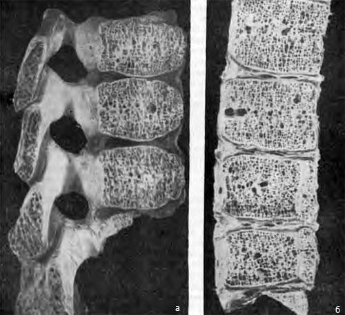 Костная структура тел позвонков на продольных распилах