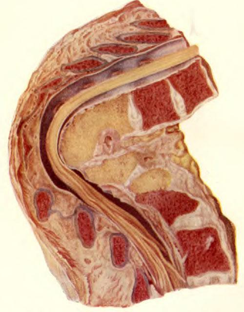 Последствия туберкулезного спондилита, перенесенного в детском возрасте