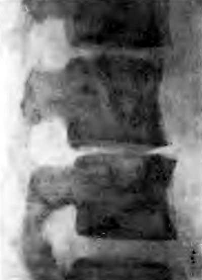 Первичный костный очаг в верхнем отделе III поясничного позвонка и резкое сужение межпозвонкового пространства