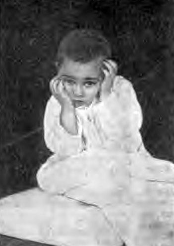 Туберкулез верхних шейных позвонков у ребенка 5 лет