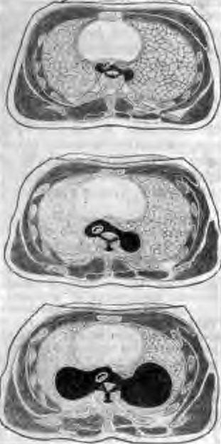 Схема поперечного сечения грудной клетки на уровне натечных абсцессов