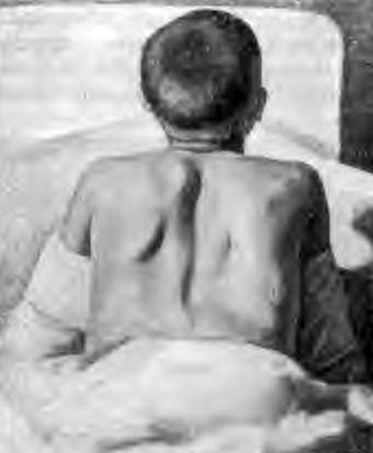 Появление мышечный тяжей («вожжей») при исследовании позвоночника