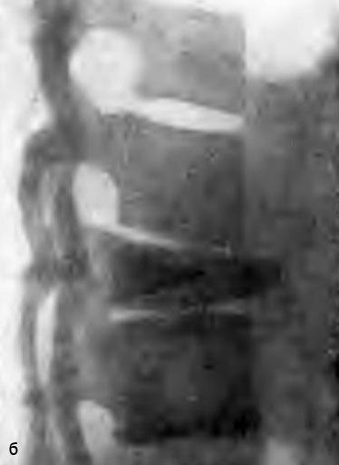 Остеохондроз позвонка (болезнь Кальве). Больная Н., 10 лет (б)