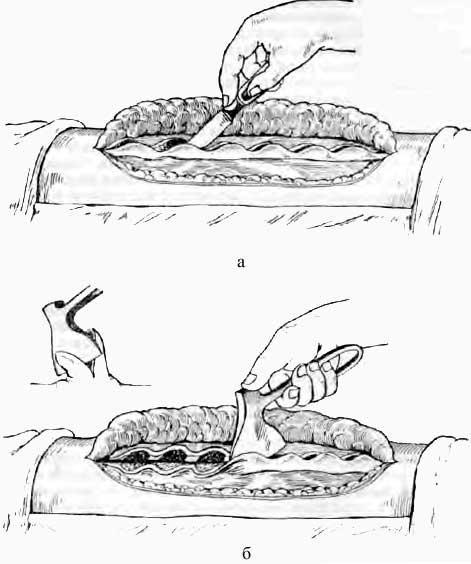 Подготовка костного ложа для пересадки костной пластинки