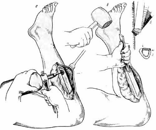 Образование прямой костной пластинки из передневнутреннего отдела большеберцовой кости