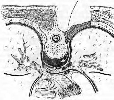 Схема костотрансверзэктомии по Менару