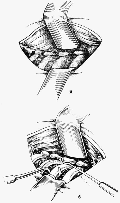 Техника производства костотрансверзэктомии (а, б)