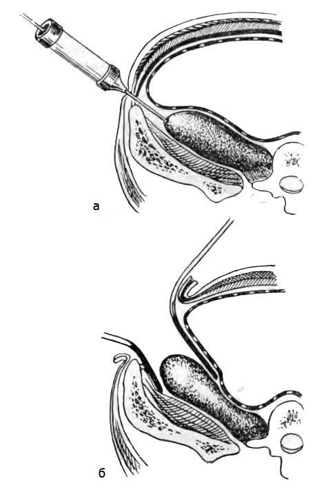 Положение псоас-абсцесса на схеме по перечного сечения