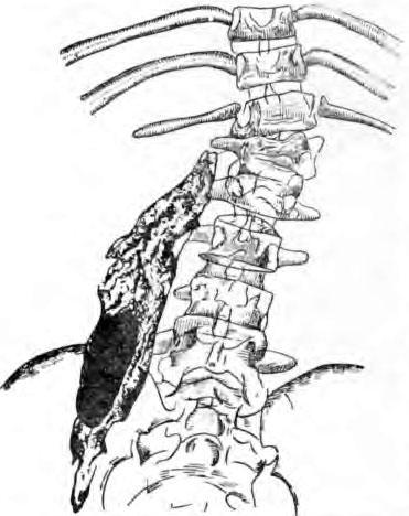 Натечный абсцесс, заполненный контрастной массой (зарисовка с рентгено-абсцессограммы)
