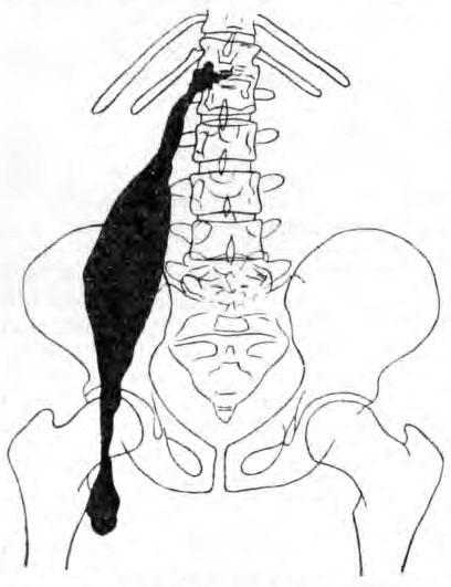 Типичный псоас-абсцесс, исходящий из пораженных грудо-поясничных позвонков и спускающийся на бедро