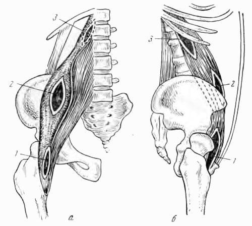 Схема укорачивающей фистулотомии с тремя типичными разрезами при лечении свищей у больных с туберкулезным поражением грудопоясничного и поясничного отделов позвоночника (по Корневу)