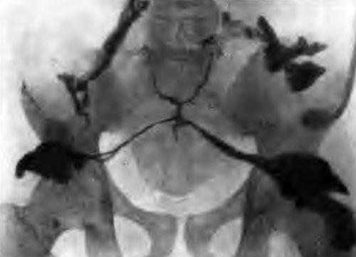 Распространение пресакральных гнойных ходов в стороны по грушевидным мышцам