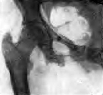 Деструкция седалищного бугра и верхней ветви седалищной кости