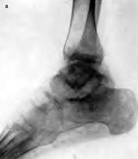 Резекция голеностопного сустава (а)