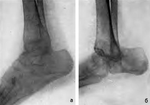Астрагалэктомия голеностопного сустава коленный сустав эндопротезирование отзывы