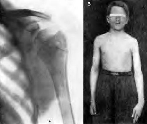 Больной 3., 15 лет. Туберкулез левого плечевого сустава