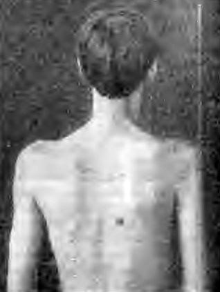 Атрофия дельтовидной и лопаточных мышц при туберкулезе правого плечевого сустава