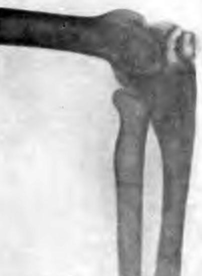 Изолированный костный очаг в локтевом отростке. Больной X., 23 лет