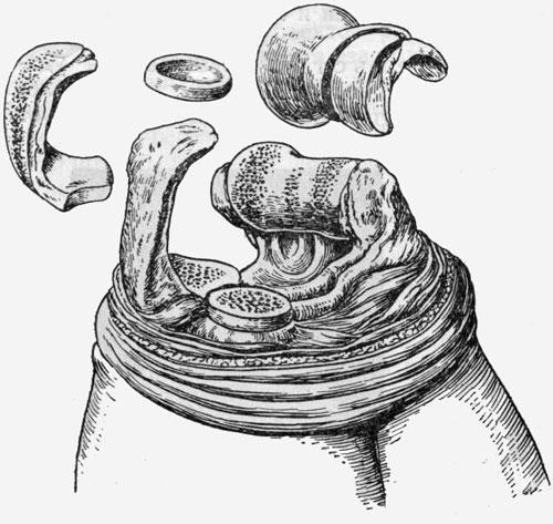 Резекция локтевого сустава