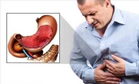 Признаки и симптомы гастрита