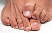 Признаки грибка на ногтях. Лечение и удаление в домашних условиях