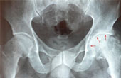 Как лечить коксартроз тазобедренного сустава