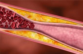 Причины и диагностика атеросклероза