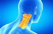 Межпозвоночная грыжа шейного отдела: причины, симптомы