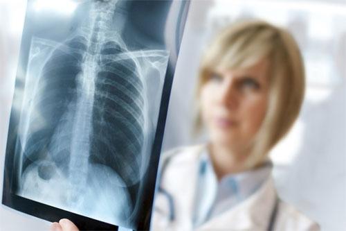 Болезни легких и их лечение