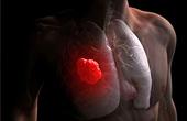 Рак лёгких: симптоматика и причины