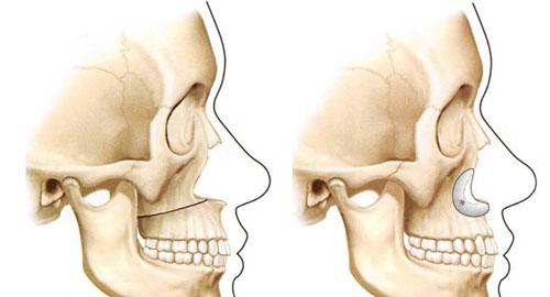 Имплантация костей носа: показания
