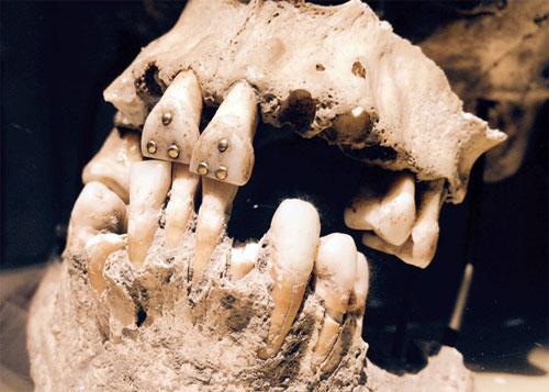 История возникновения протезирования зубов