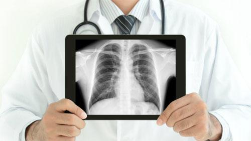 Рентгенологическое обследование: за и против
