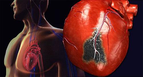 Здоровое сердце и сосуды: возможно ли?
