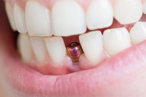 """Высочайший уровень лечения зубов в """"Стом 1"""""""