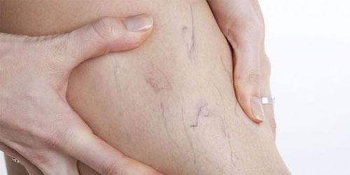 Варикозные вены: что нужно знать, причины, симптомы, подтверждение диагноза