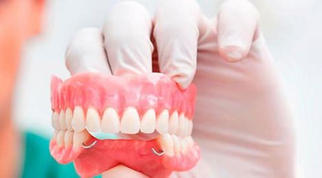 Съемное протезирование при неполном отсутствии зубного ряда