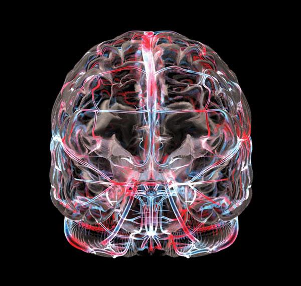Исследование КТ головного мозга